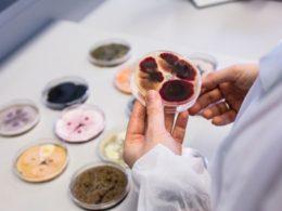 Estudo de Microbiologia